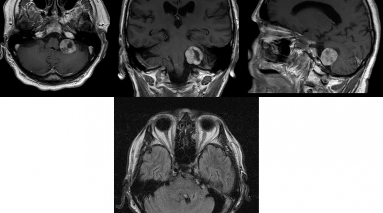 Neurinoma anguli pontocerebellaris  – PREOP et POSTOP scans