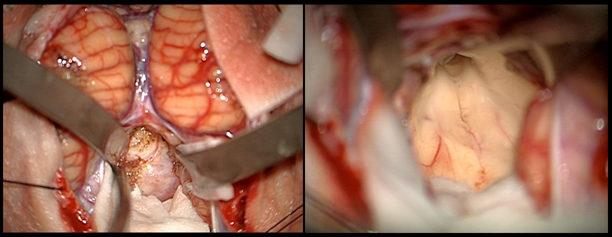 Meningeoma of the IV ventricle – intraoperative
