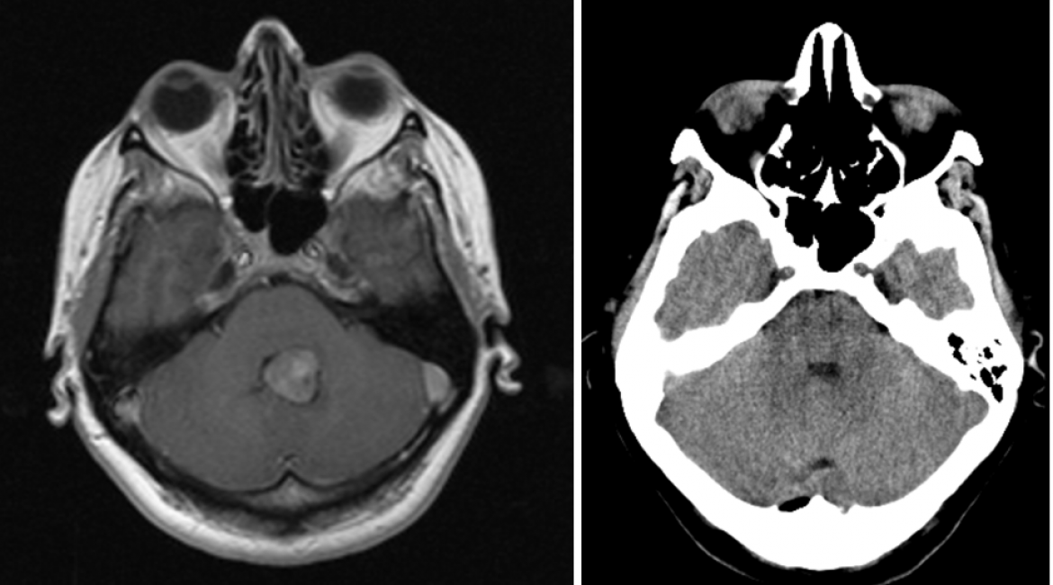 Meningeoma of the IV ventricle