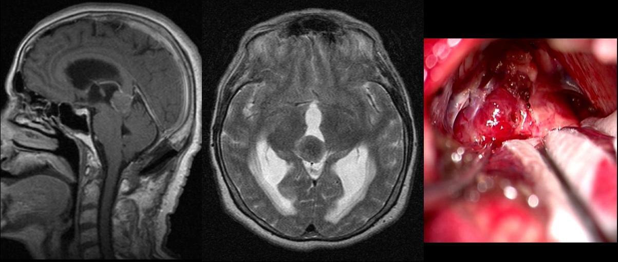 Pinal region tumors