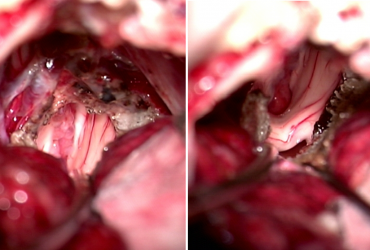 Pinal region tumors II