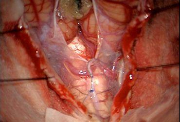 Arachnoidal sutures