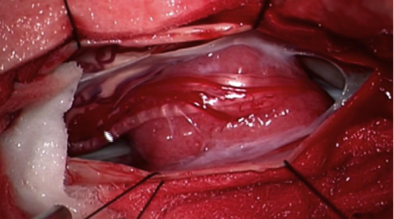 Tm canalis spinalis ThI et ThII – Neurinoma