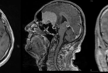 Olfactory meningioma