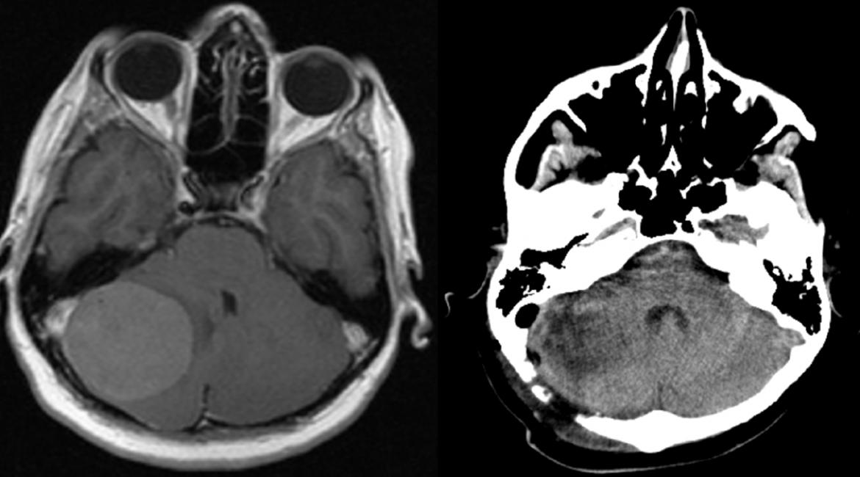 Meningioma fossae cranii post.  – PREOP et POSTOP scans