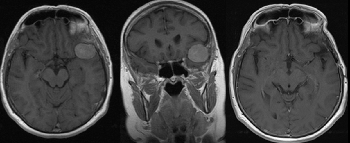 PREOP MR scans and POSTOP MR scan – meningioma.