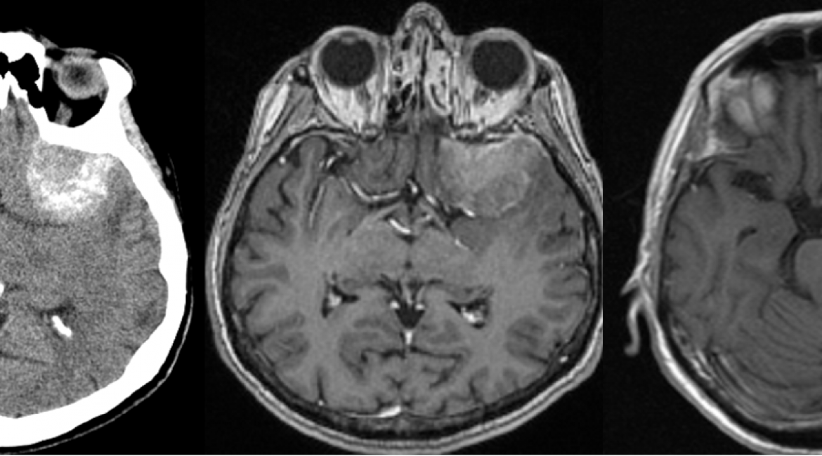 PREOP CT and MR scans and POSTOP MR scan – meningioma.