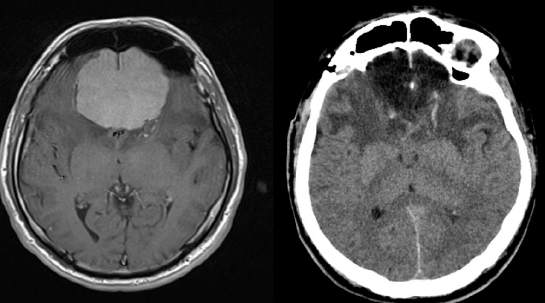Olfactory meningioma-  PREOP et POSTP scans