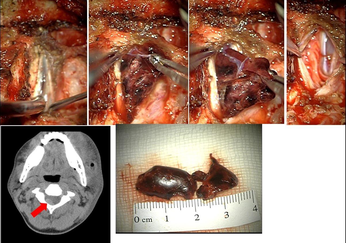 Spinal subdural hematoma – hemilaminectomy CII.